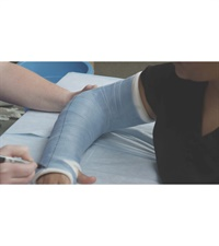 Image of Casting & Splinting - Upper Body