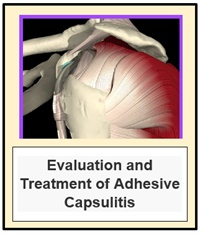 Evaluation and Treatment of Adhesive Capsulitis