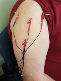 Fundamentals of Neuromuscular Dry Needling: Level 1 2